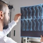 How To Deal With Spinal Cord Injuries And Rising Medical Bills?